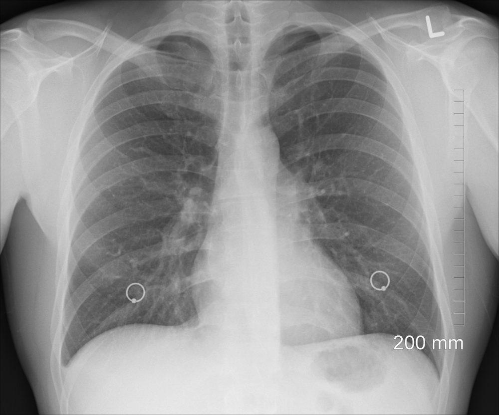 """Ogólnopolska akcja badań spirometrycznych """"Weź głęboki oddech""""."""